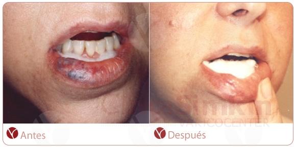Angioma de labios. Post-tratamiento