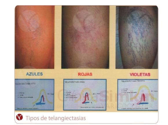 Arañitas: tipos de telangiectasias