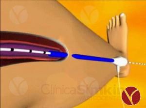 Flebología. Operación de várices sin cicatrices ni dolor.
