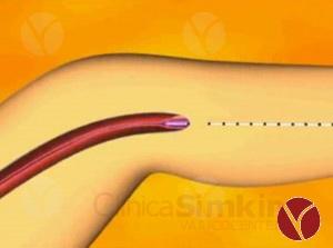 Flebología. Operación de várices con láser endoluminal.